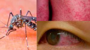 zika.jpg.aspx_-300x167 zika.jpg.aspx